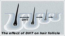the-effect-of-DHT-hair-follicle-for-hair-loss